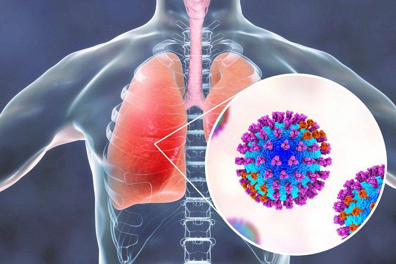 Viêm phổi do cúm virus