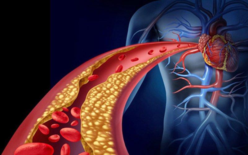 nguy cơ bệnh tim