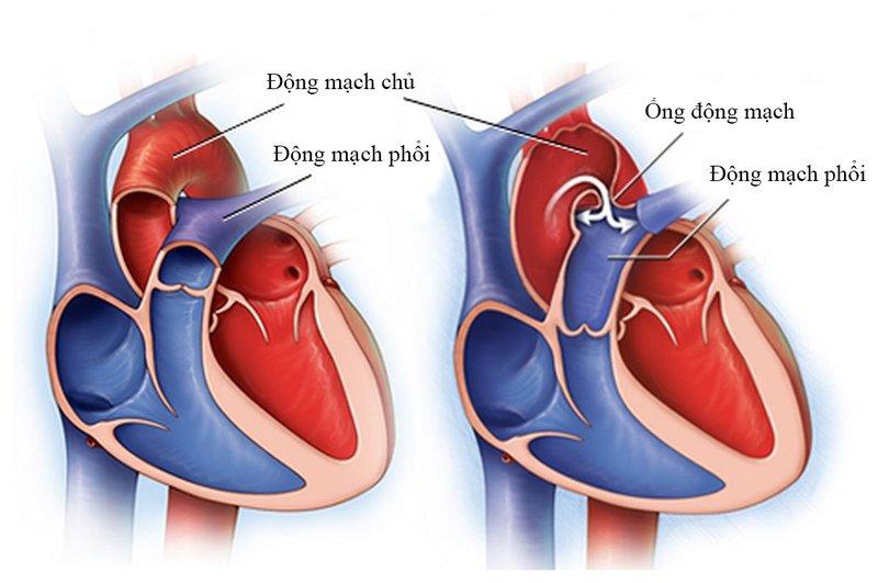 Uống thuốc điều trị bệnh còn ống động mạch bị đau đầu do đâu