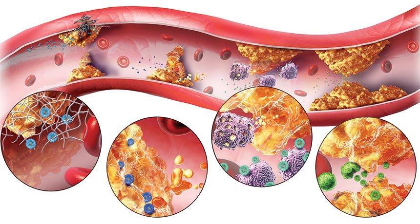Rối loạn lipid máu, bệnh mỡ máu