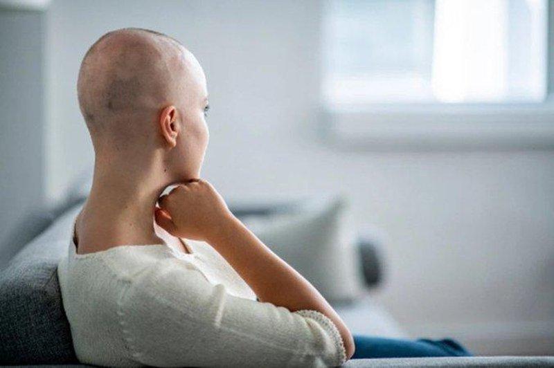 Rụng tóc, đầu trọc ung thư