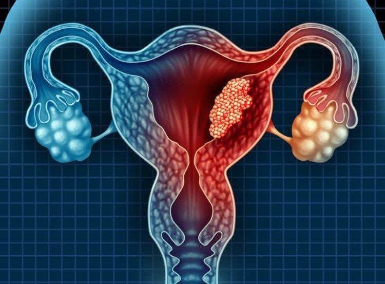 Ung thư buồng trứng