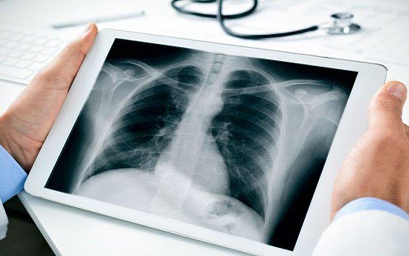 chụp x quang viêm phổi