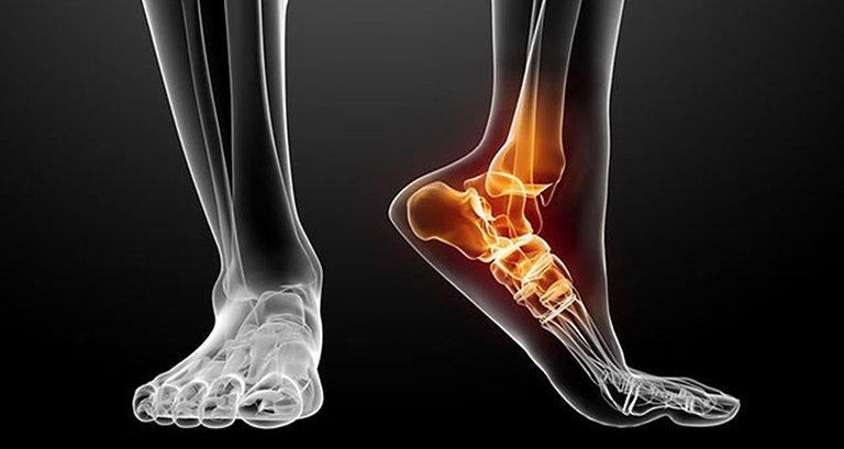 Trật khớp cổ chân