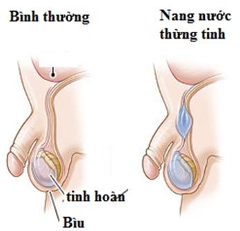 Bệnh u nang thừng tinh