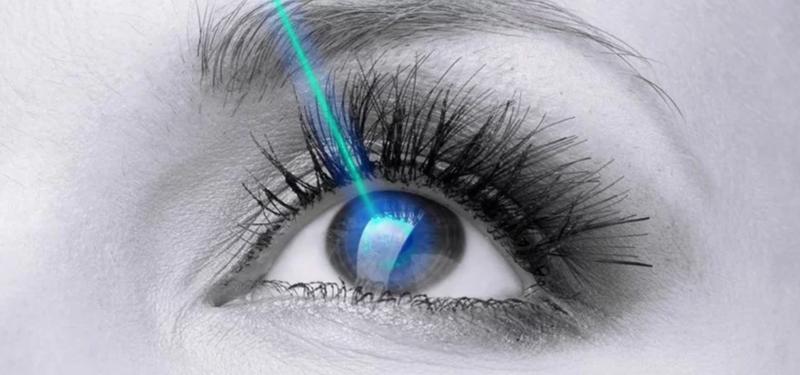 Mổ mắt cận lasik