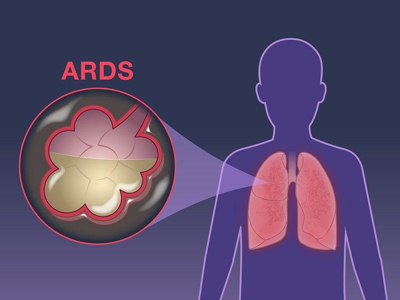 Hội chứng suy hô hấp nặng ở người lớn ARDS
