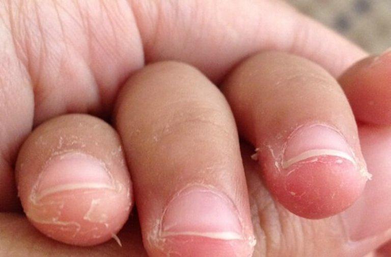 Bóc da đầu ngón tay