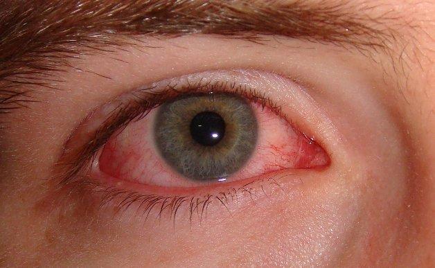 Đỏ bên trong tròng trắng của mắt