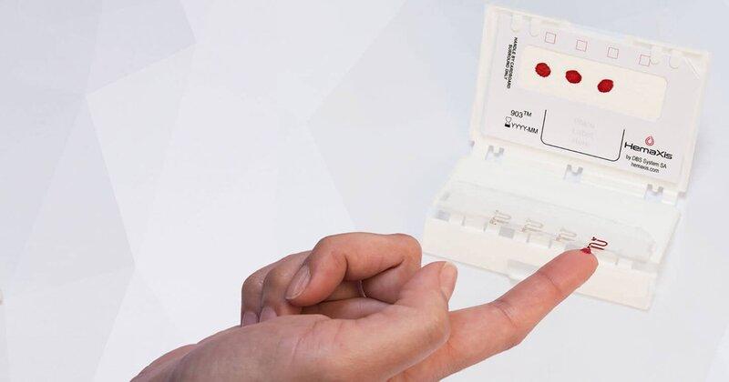Xét nghiệm đường máu mao mạch
