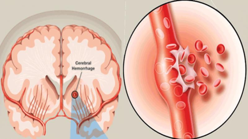 vỡ mạch máu não