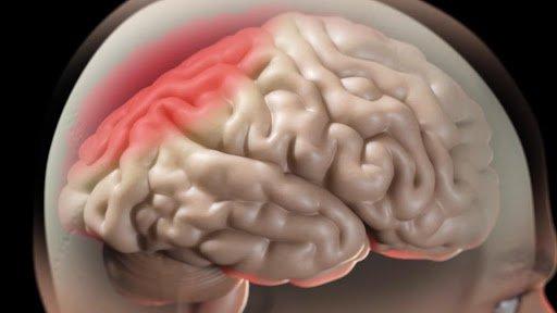 Hội chứng tăng áp lực trong sọ
