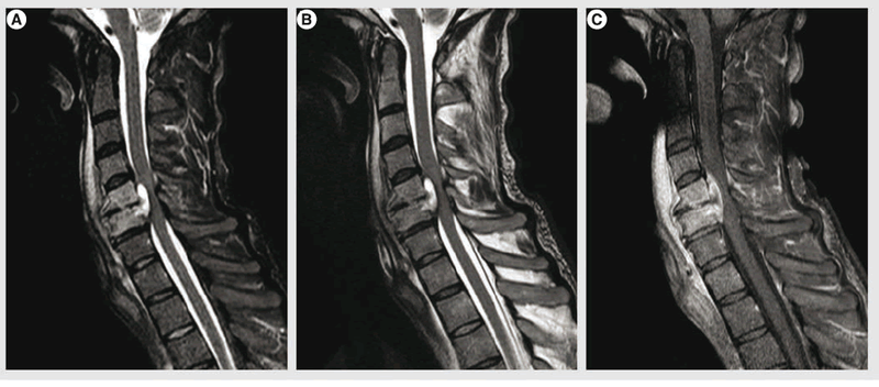 Hình ảnh áp xe ngoài màng tủy trên phim CT