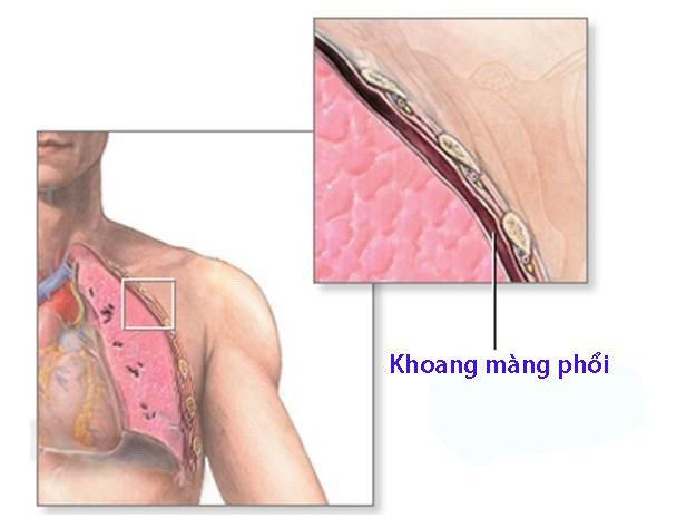 Phẫu thuật bóc màng phổi