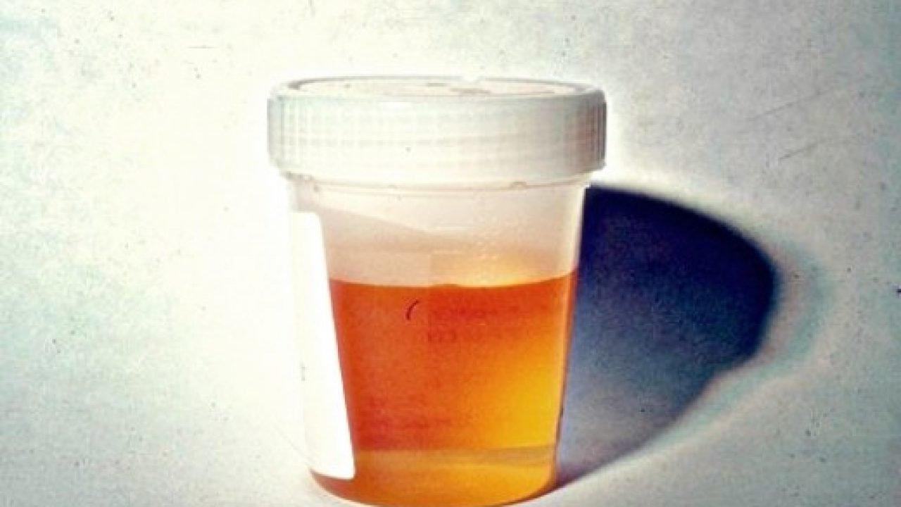 nước tiểu màu cam đậm