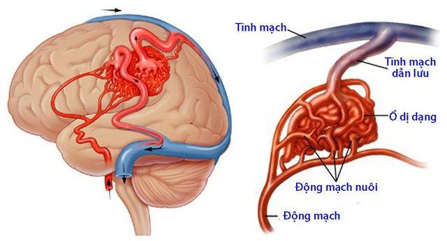 dị dạng động - tĩnh mạch màng cứng