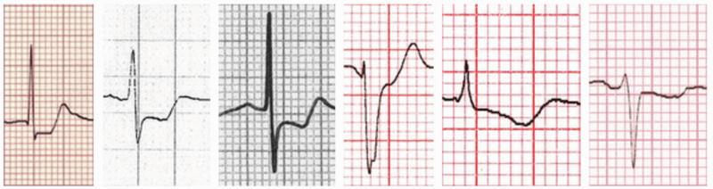 Đoạn ST trong hình thái thiếu máu cục bộ cơ tim