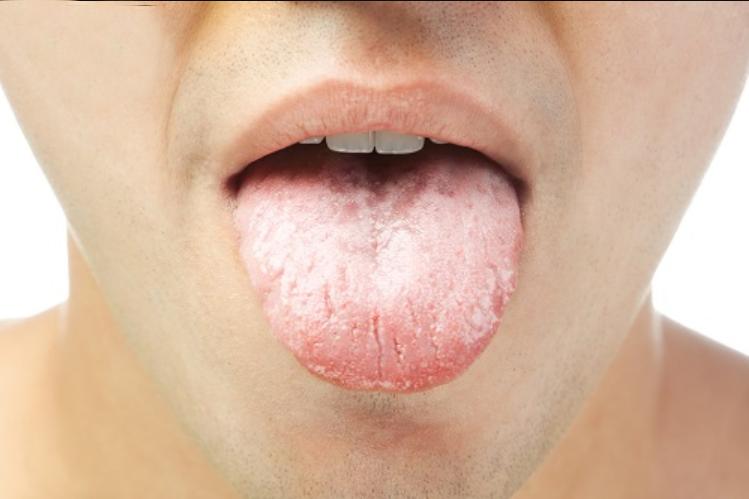 Khô miệng lưỡi