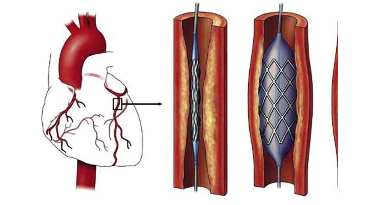 Can thiệp động mạch vành