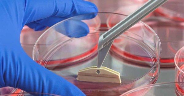 Tế bào gốc