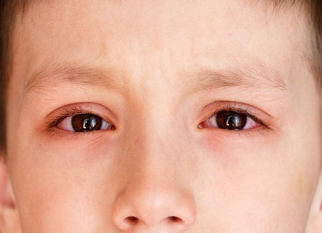 Đau mắt