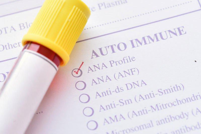 Xét nghiệm kháng thể kháng nhân (ANA)