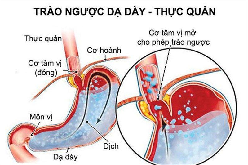 Dấu hiệu cảnh báo trào ngược dạ dày - thực quản