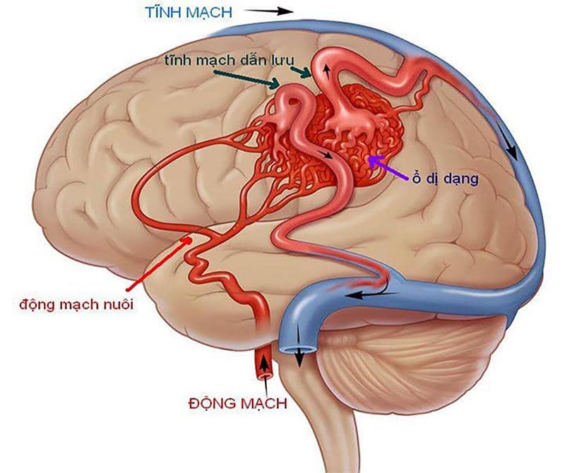 dị dạng mạch đầu