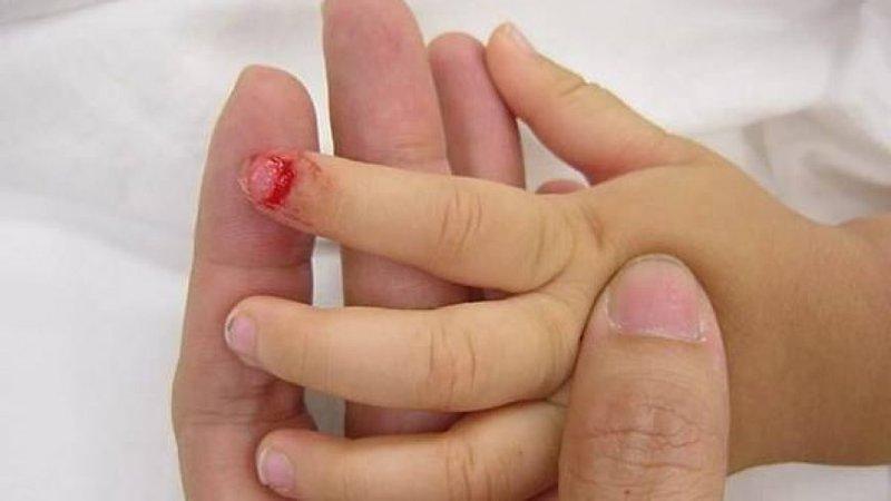 trẻ bị chảy máu