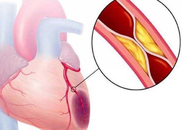 Hội chứng mạch vành
