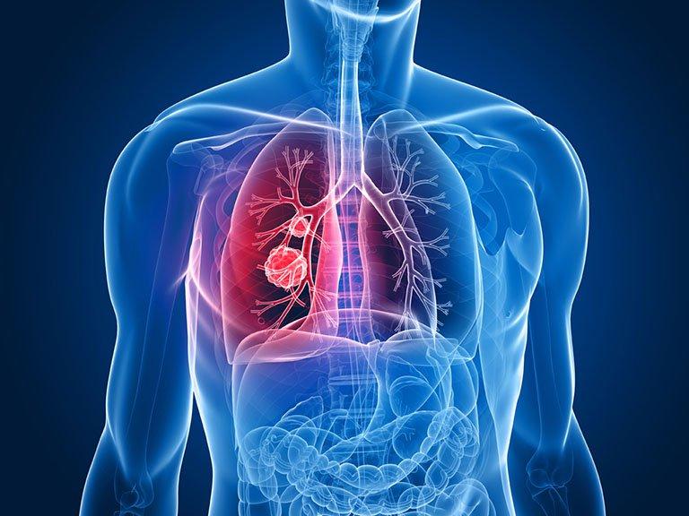 Bị u phổi di căn sang xương nên điều trị thế nào cho hợp lý?