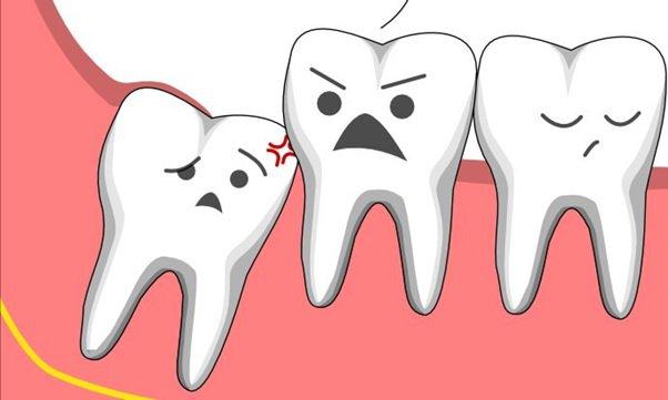 Răng khôn đã mọc có nên nhổ không?