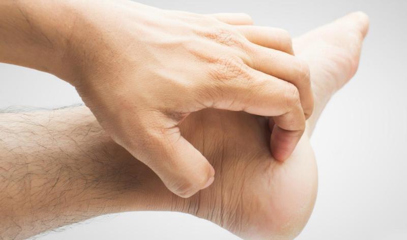 Mu bàn chân xuất hiện vùng nhỏ gây ngứa