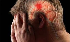 Đau nửa đầu kéo dài vùng bên trái là triệu chứng của bệnh gì?