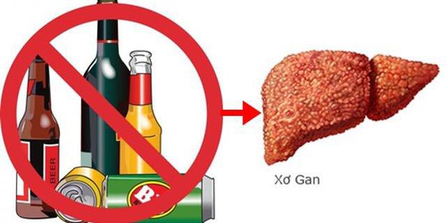 Điều trị bệnh xơ gan do rượu bằng phương pháp ghép tế bào gốc được không?