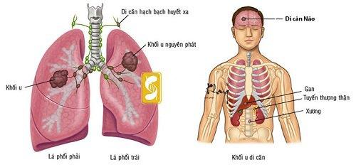 Sử dụng thuốc có thể tiêu diệt được tế bào ung thư phổi giai đoạn 4 không?