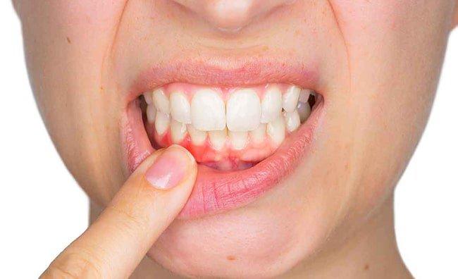 Bị chảy máu khi đánh răng