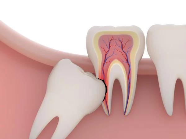 Răng khôn mọc được ⅓