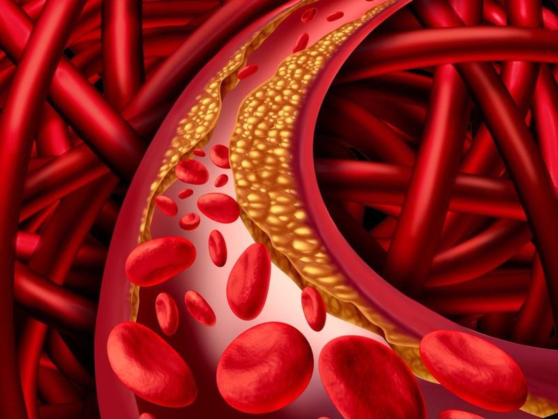 Rối loạn mạch máu