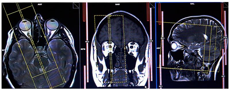 Chụp cộng hưởng từ hốc mắt và thần kinh thị giác