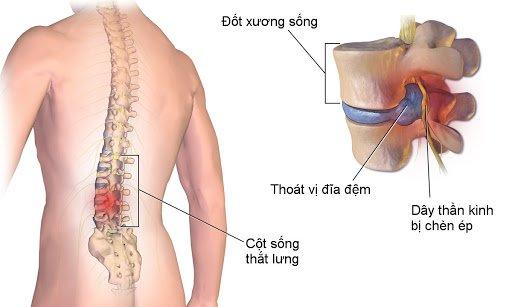 Chụp MRI cột sống thắt lưng