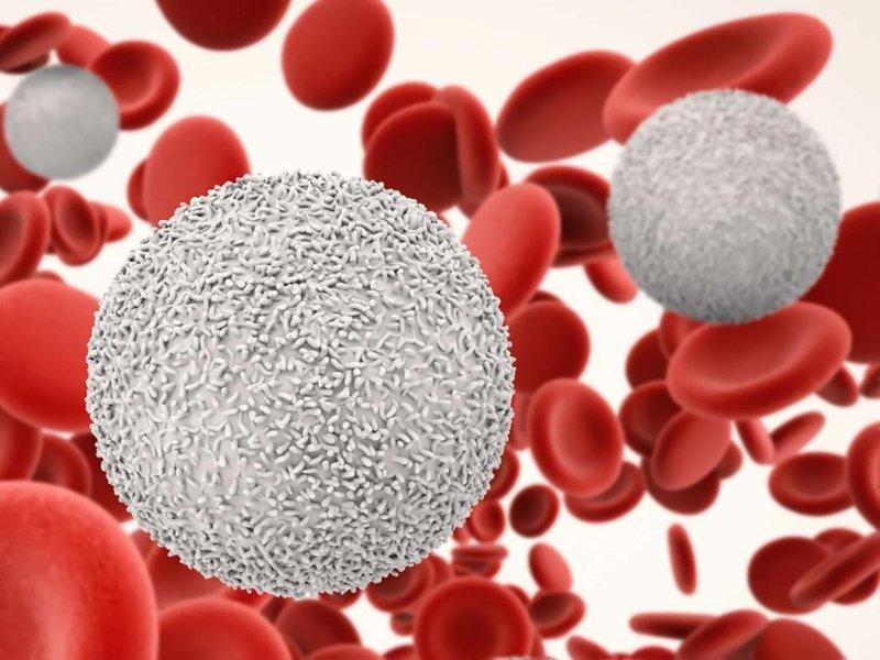 Nhiễm trùng có phát triển thành bệnh máu trắng không?