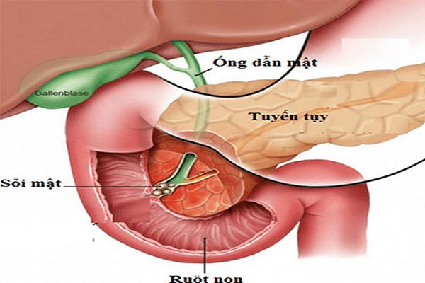 Viêm tụy cấp do sỏi