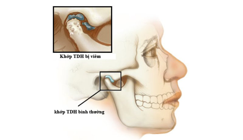 Đau thái dương hàm