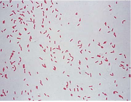 Nhiễm khuẩn