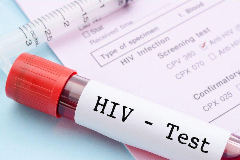 Xét nghiệm HIV