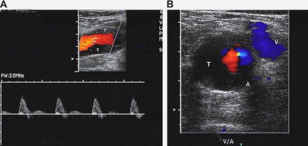 Siêu âm Doppler mạch máu
