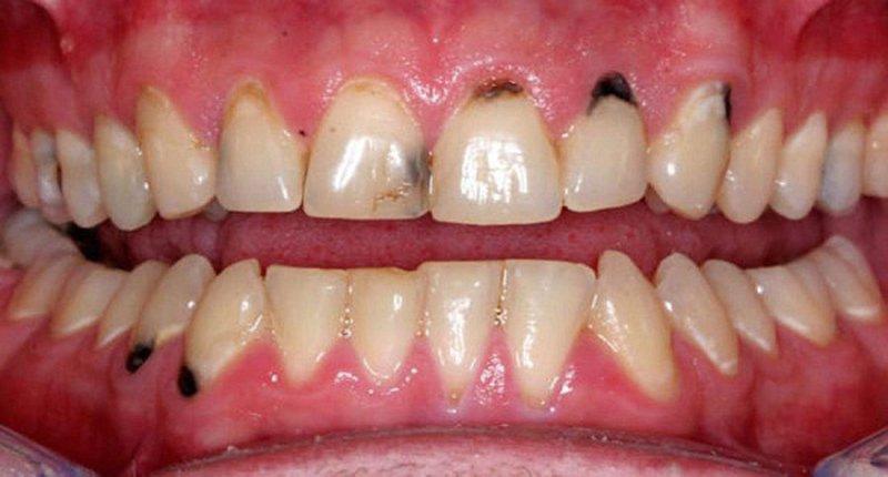 chân răng đen