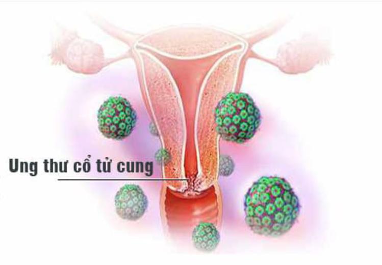 HPV và ung thư cổ tử cung