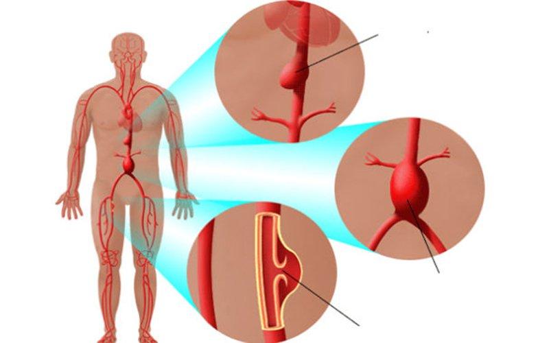 chứng giả phình động mạch